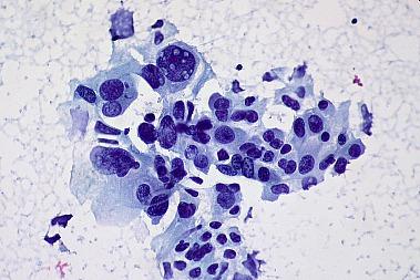 Alternative Krebstherapien erhöhen Heilungschancen - Non-small Cell Carcinoma of the Lung, FNA