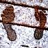 Das bedeuten kalte Füße