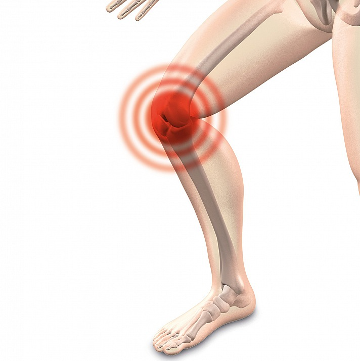 Ganzheitliche Maßnahmen bei Arthrose