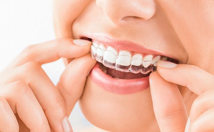 Der Weg zum perfekten Lächeln: Unsichtbare Alternativen - Die moderne Zahntechnik hält noch einige andere Optionen bereit