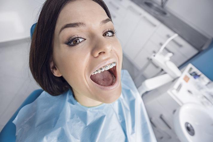 Die Zahnspange für Erwachsene