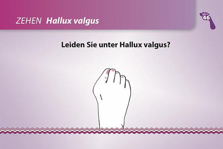 Hallux – vom Weg abgekommen